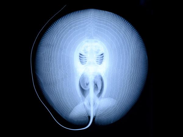 X-ray of Amazon River stingray